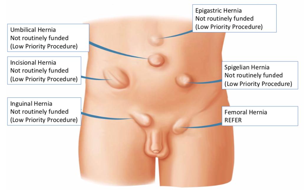 Hernia Repair Adults Inguinal Umbilical Para Umbilical Incisional Femoral Hernia Gp Gateway